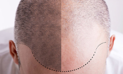 tricopigmentazione valida alternativa trapianto
