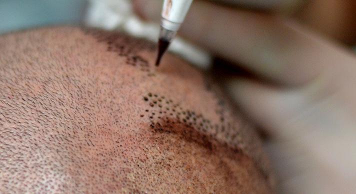 tricopigmentazione cuoio